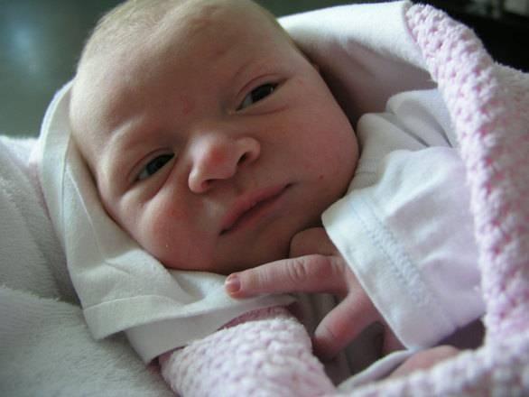 婴儿头偏向一侧怎么办头睡偏了对婴儿有危害吗