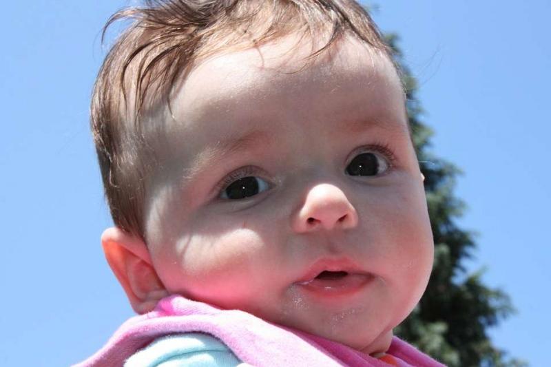 新生儿黄疸挂什么科室新生儿黄疸的症状